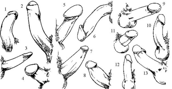forma del pene di erezione)